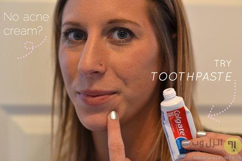 تسکین جوش های صورت با استفاده از خمیر دندان