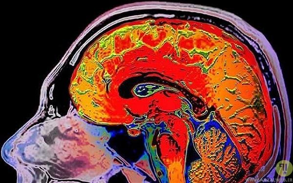 brain-head
