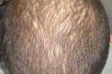 چگونه موهای کم پشت خود را پرپشت کنیم+راهکار