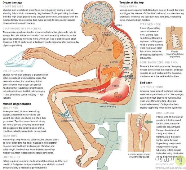 سایر خطرات ناشی از عدم فعالیت و مضرات نشستن زیاد