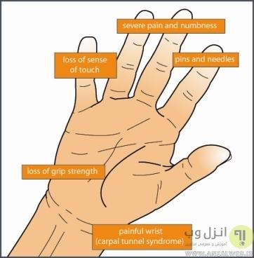 خطرات ویبره گوشی برای انسان، انگشت سفید یا سندرم ارتعاش دست و بازو (Vibration-induced white finger)