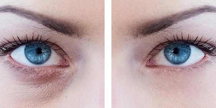 آموزش تصویری از بین بردن سیاهی زیر چشم در فتوشاپ